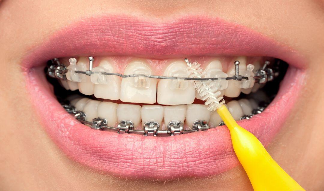 Szczoteczka do aparatu ortodontycznego